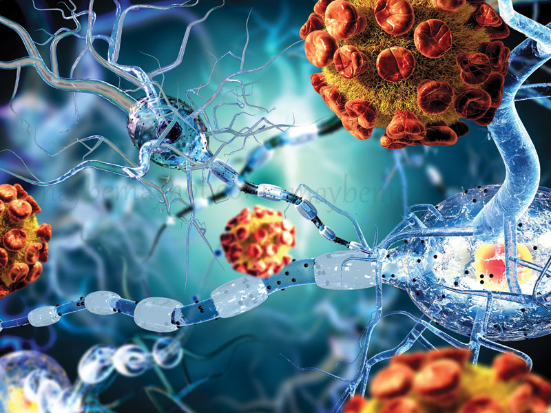 five-deadly-diseases-that-could-be-caused-by-auto-immune-disorders